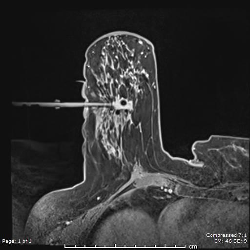 MRI Breast Biopsy